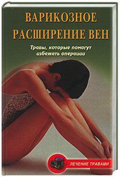 Ольга Абрамович Варикозное расширение вен. Травы, которые помогут избежать операции