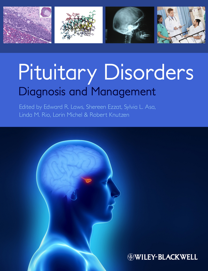 Shereen Ezzat Pituitary Disorders. Diagnosis and Management attanasio ronald dental management of sleep disorders