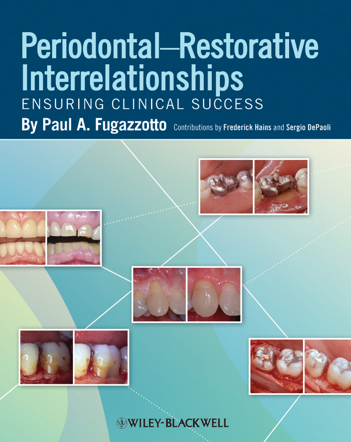 Frederick Hains Periodontal-Restorative Interrelationships. Ensuring Clinical Success