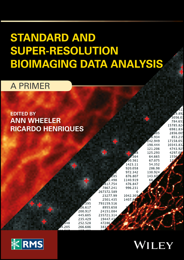 Ann Wheeler Standard and Super-Resolution Bioimaging Data Analysis. A Primer super resolution