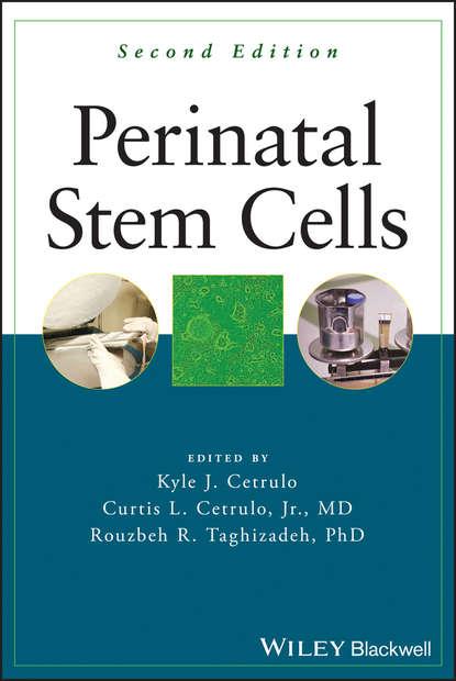 Группа авторов Perinatal Stem Cells недорого