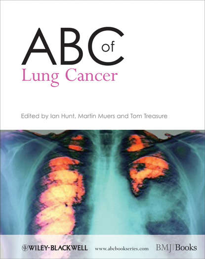 Ian Hunt ABC of Lung Cancer jack roth a lung cancer