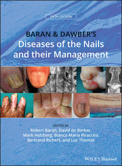 Luc Thomas Baran and Dawber's Diseases of the Nails and their Management kevin gatter the diagnosis of lymphoproliferative diseases
