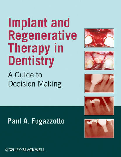 Группа авторов Implant and Regenerative Therapy in Dentistry marcus hines marketing implant dentistry