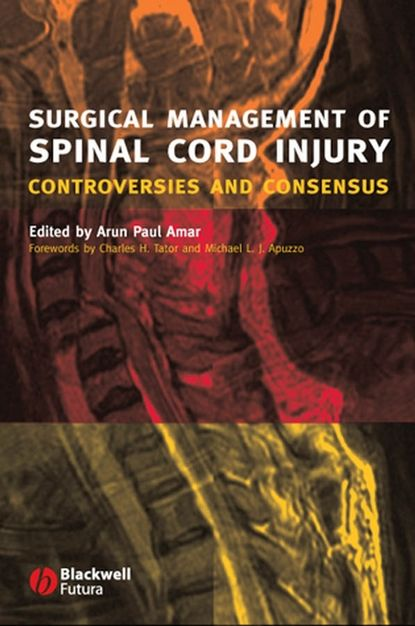 Группа авторов Surgical Management of Spinal Cord Injury dennis caine j epidemiology of injury in olympic sports