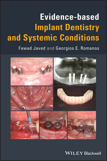 Georgios Romanos Evidence-based Implant Dentistry and Systemic Conditions systemic shifts in sociology