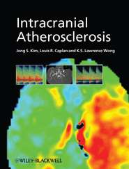Intracranial Atherosclerosis